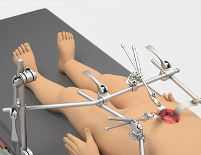 Система для детской абдоминальной хирургии
