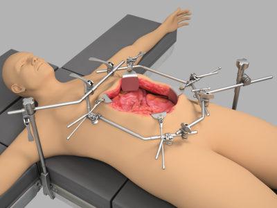 Система для гипертермической внутрибрюшной химиотерапии (HIPEC)