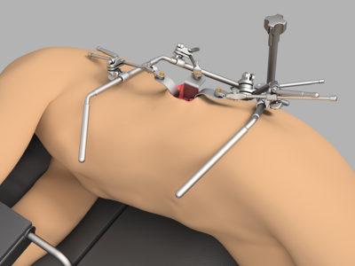 Система для трансплантации почки