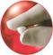 Абсорбирующаяся гемостатическая пудра Спонгостан Пудра (Spongostan Powder), 1г (MS0008) Ethicon (Этикон) 0