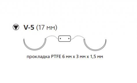 Этибонд Эксель (Ethibond Excel) 2/0, PTFE 10шт по 75см, 2 кол-реж. иглы 17мм W10B55