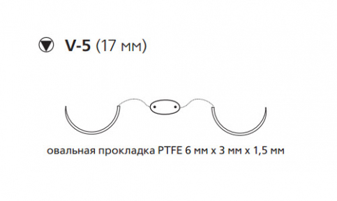 Этибонд Эксель (Ethibond Excel) 2/0, PTFE 8шт по 75см, 2 кол-реж. иглы 17мм MEH7715N