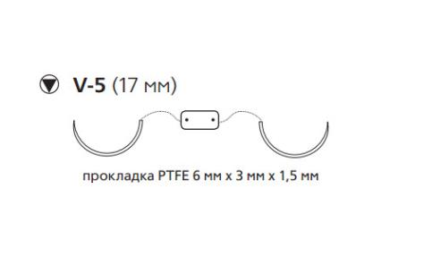 Нерассасывающийся шовный материал Этибонд Эксель (Ethibond Excel) 2/0, нить с прокладкой PTFE 4шт по 90см, 2 кол-реж. иглы 17мм, 1/2 окр., зеленая нить (W4B37) Ethicon (Этикон)