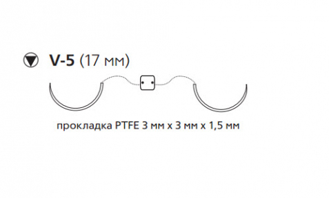 Нерассасывающийся шовный материал Этибонд Эксель (Ethibond Excel) 2/0, нить с прокладкой PTFE 10шт по 75см, 2 кол-реж. иглы 17мм, 1/2 окр., зеленая, белая нить (W10B54) Ethicon (Этикон)